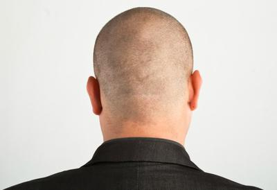 What a shaved head could look like